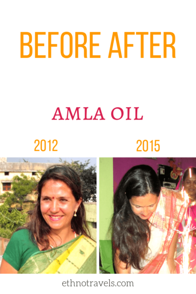 Amla oil for hair - best oil for hair growth and thickness, beard growth oil, improves health