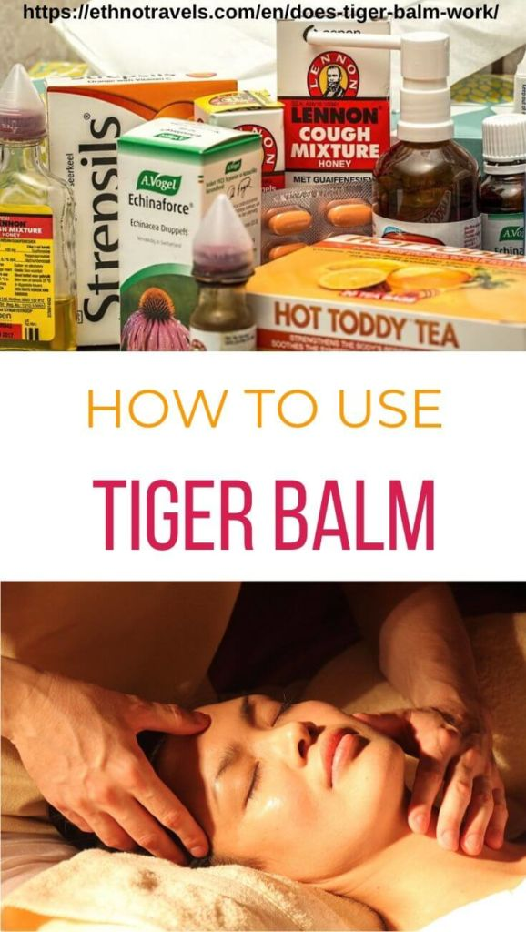 Does tiger balm work